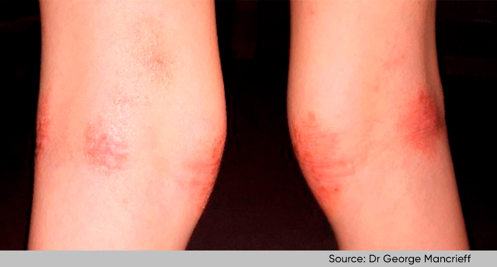 legs with atopic dermatitis