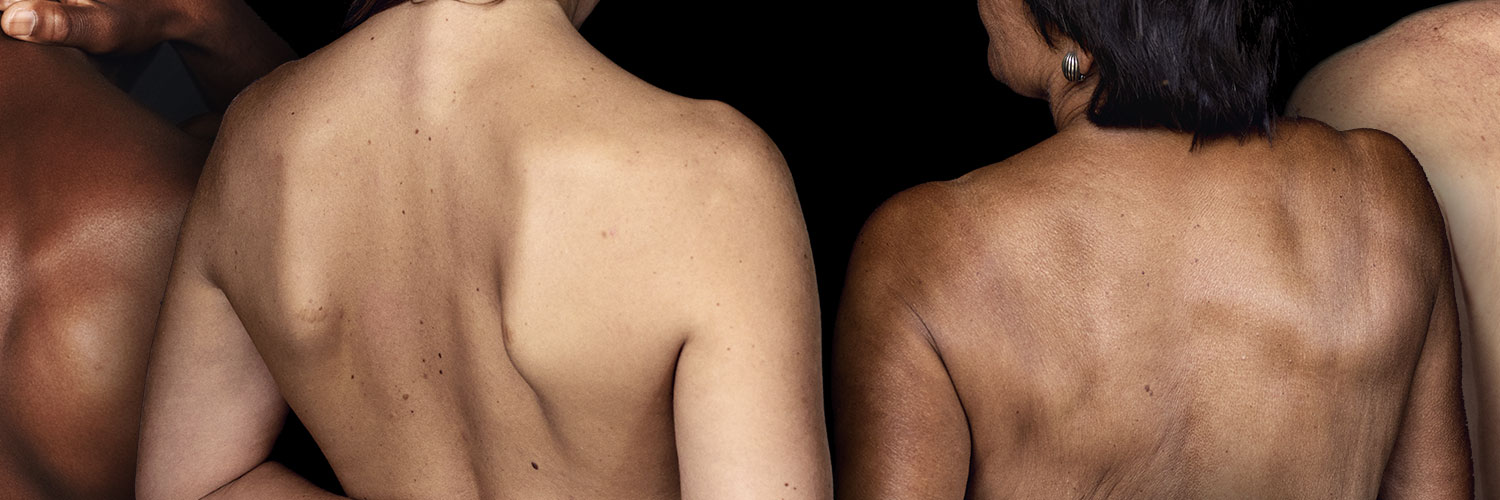 two people showing their back with skin disorders